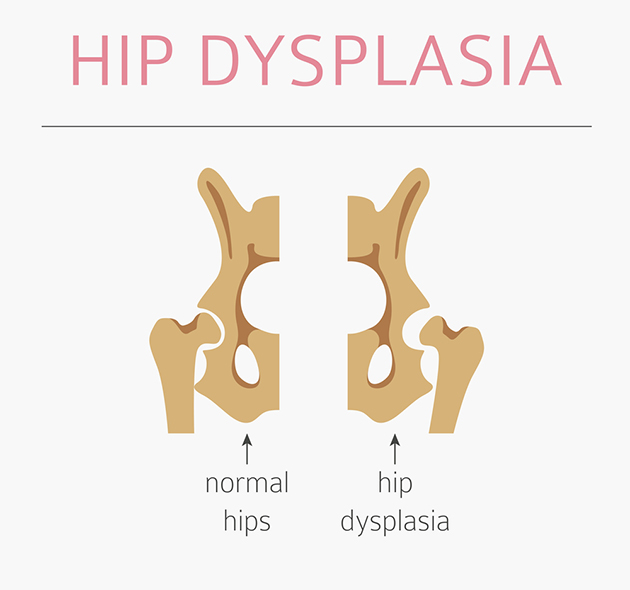 hip dysplasia diagram
